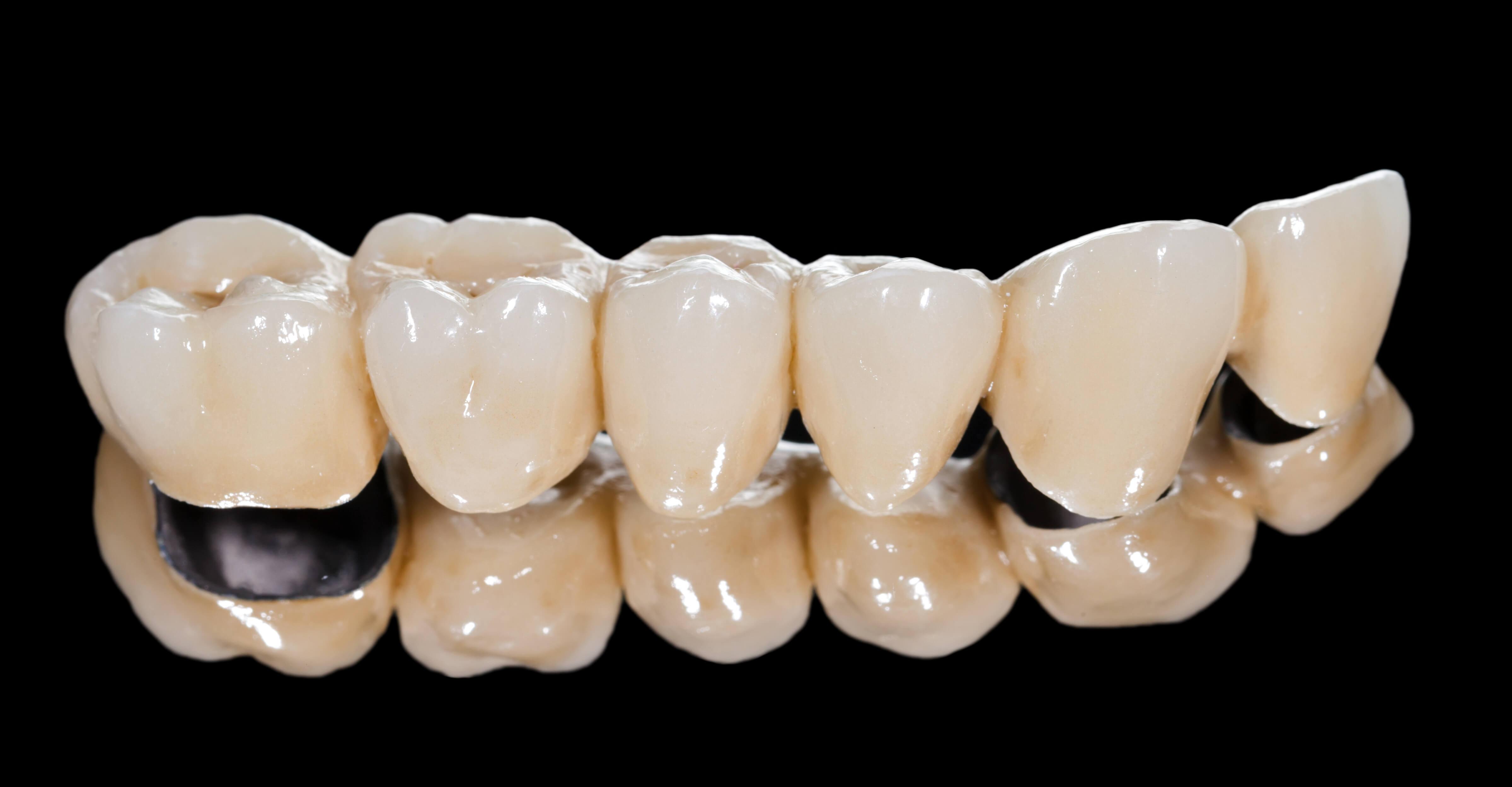 Modern kaplamalar dişler üzerinde: Bu nedir